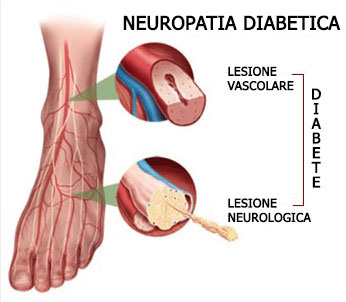 piede diabetico - come intervenire